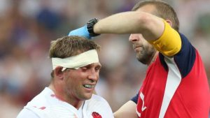 University study will examine long-term health of rugby players