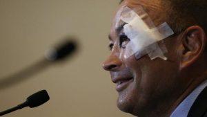 Six Nations: Eddie Jones – what has happened to his eye?